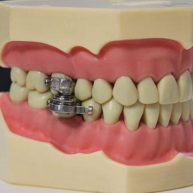 """""""قفل الأسنان"""".. أغرب جهاز في العالم لإنقاص الوزن"""