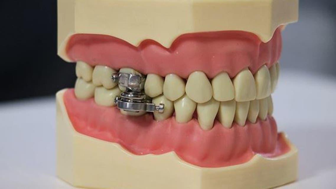 دستگاه قفل دهان