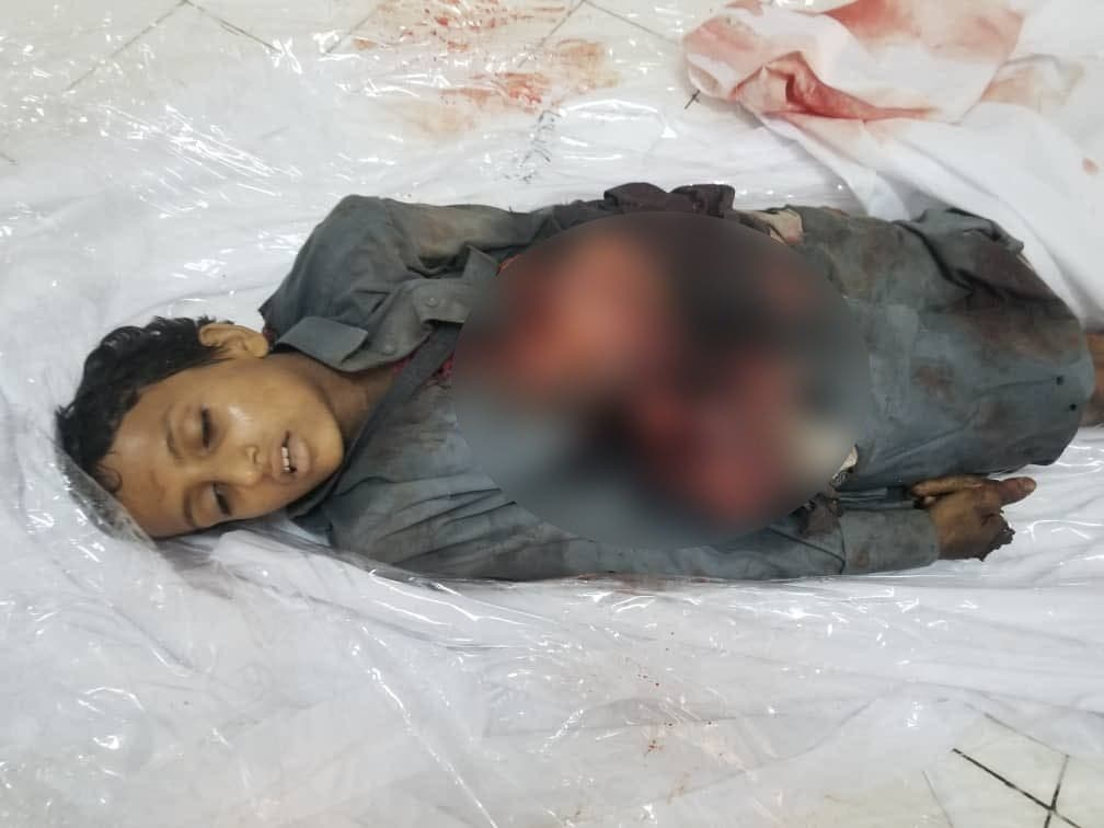 من ضحايا الحوثي في مأرب