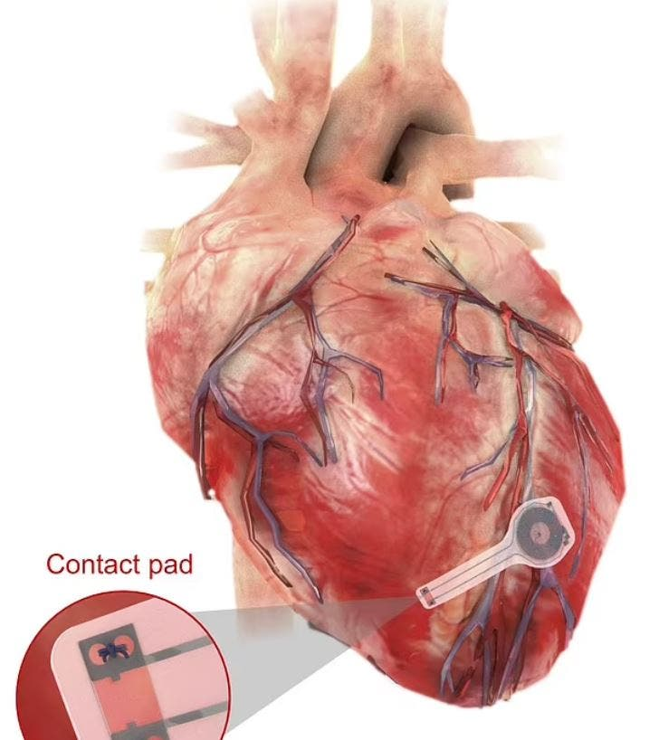 جهاز تنظيم دقات عضلة القلب (ديلي ميل)
