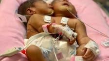 بروقت طبی امداد نے جسمانی طور پرجڑے دو سعودی بچوں کی زندگی بچا لی