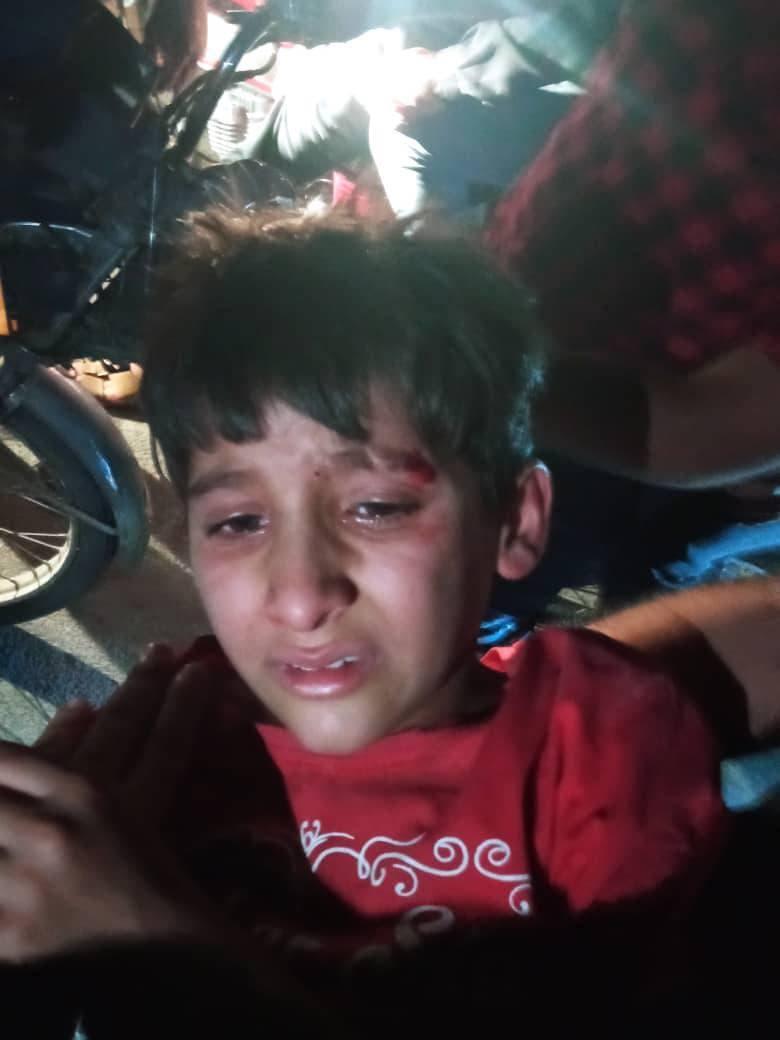 طفل أصيب جراء إلقاء القنابل المسيلة للدموع على المتظاهرين في الفلاحية