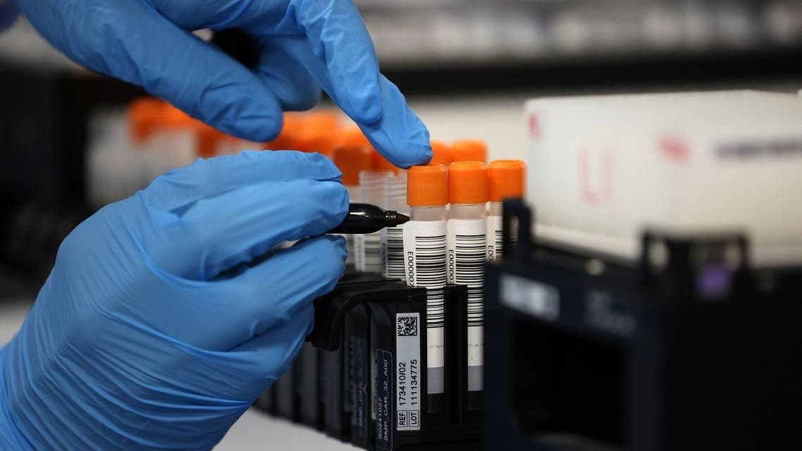 A lab technician works at the Amazon COVID-19 testing lab, as the coronavirus disease (COVID-19) pandemic continues in Worsley, Britain. (Reuters)