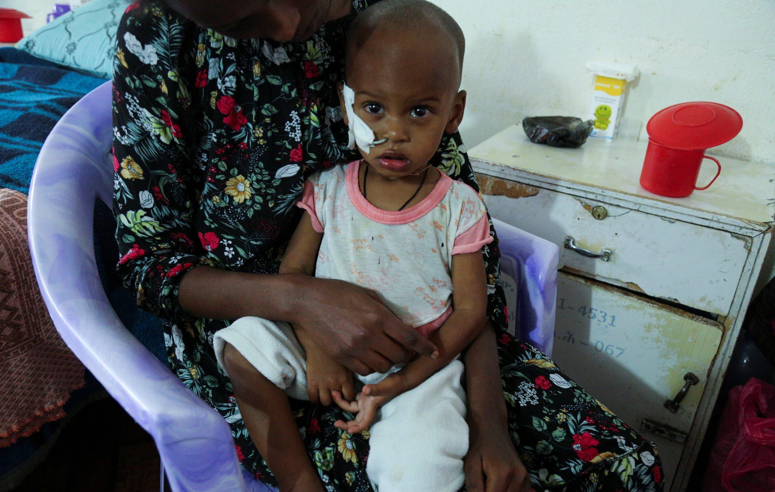 طفلة تعاني من سوء التغذية الحاد في تيغراي