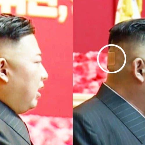 كدمة وضمادة.. رأس زعيم كوريا الشمالية يثير الحيرة!