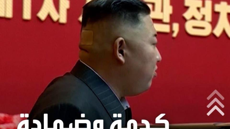 كدمة وضمادة وبقعة داكنة.. صور تثير التساؤلات حول صحة زعيم كوريا الشمالية