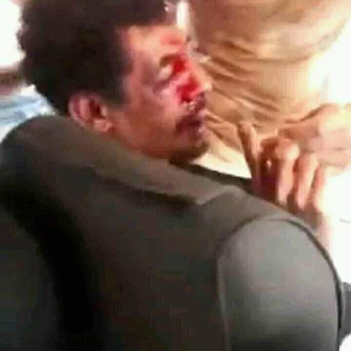فيديو يهزّ الجزائر.. قتل شاب بريء بتهمة إشعال الحرائق والتنكيل بجثته