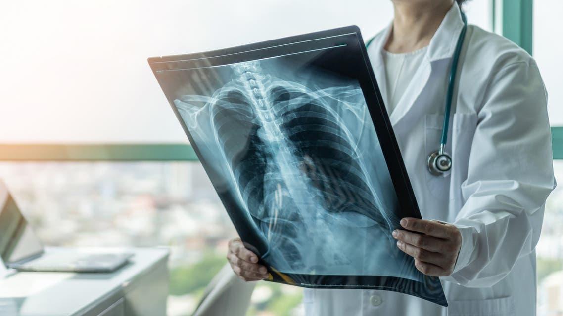 أشعة الصدر