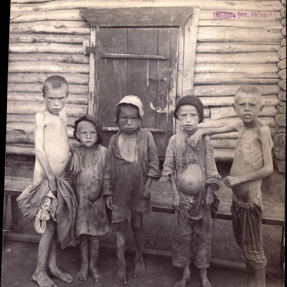 صورة لأطفال عانوا من سوء التغذية بروسيا زمن المجاعة