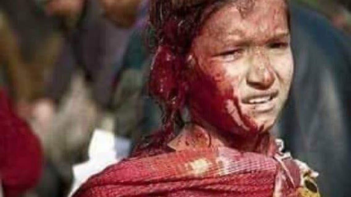 طفلة جريحة في إنفجار مطار كابول