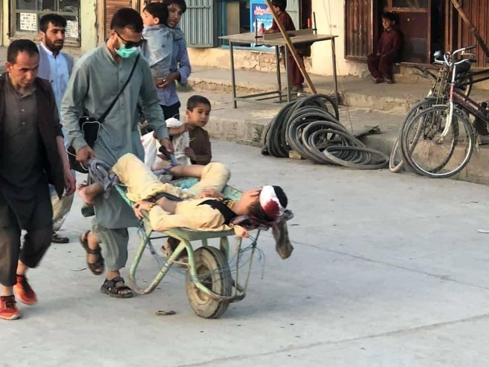 طفل جريح يحملونه بعربة إلى المستشفى