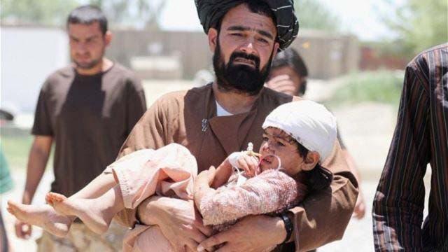 طفل أفغاني من ضحايا الحرب