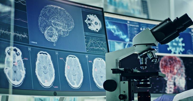 صور مقطعية للدماغ (آيستوك)