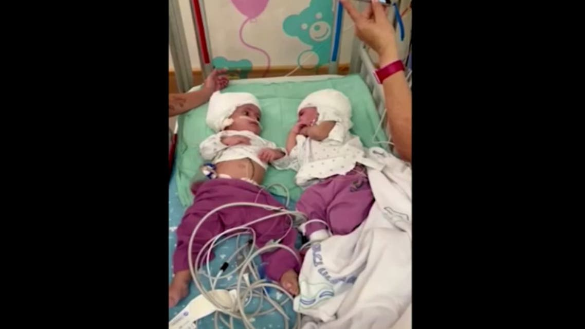 One-year-old twin Israeli girls who were born conjoined at the head, back to back, can make eye contact for the first time after undergoing rare separation surgery. (Screengrab)