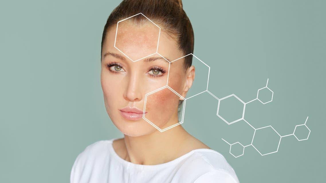 Dark spots, freckles,hyperpigmentation(melasma or chloasma),concept- skin lightening, skin whitening, Skin Brightening stock photo