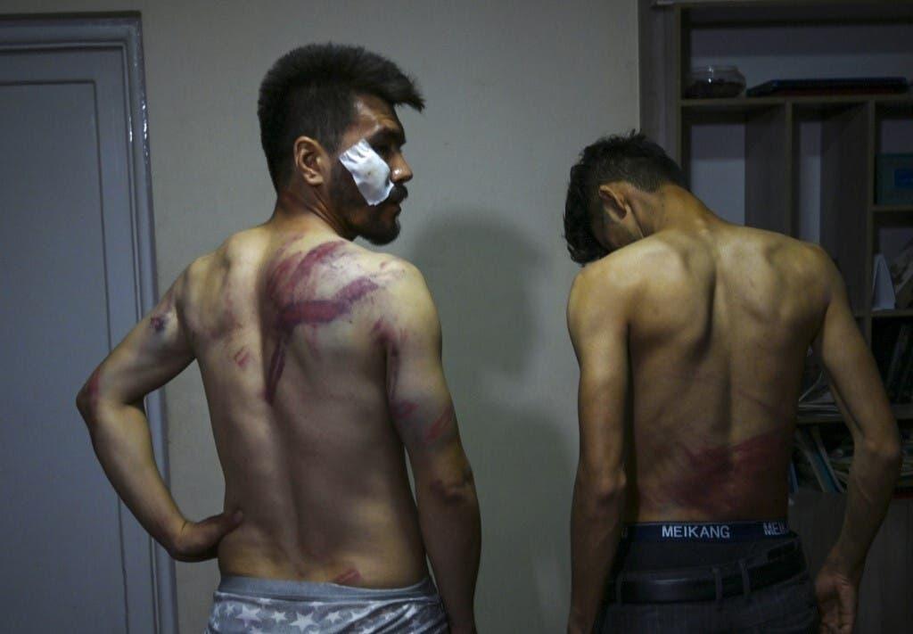 صحافيان يتحدثان عن الضرب الذي تعرضا له من قبل طالبان