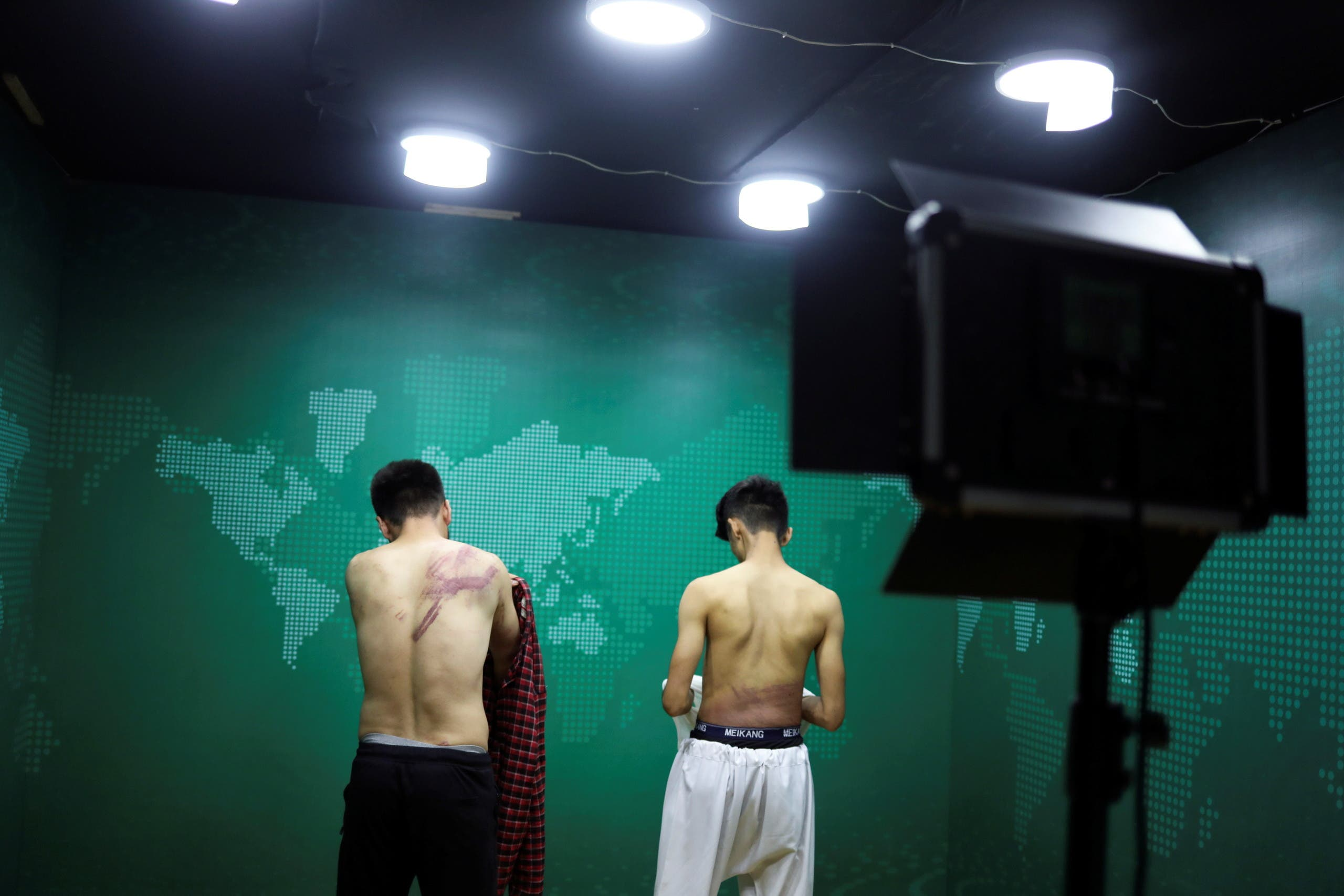 Journalists show their injuries after being beaten by the Taliban in Kabul, Afghanistan September 8, 2021 in this picture obtained from social media. Picture taken September 8, 2021. (Reuters)