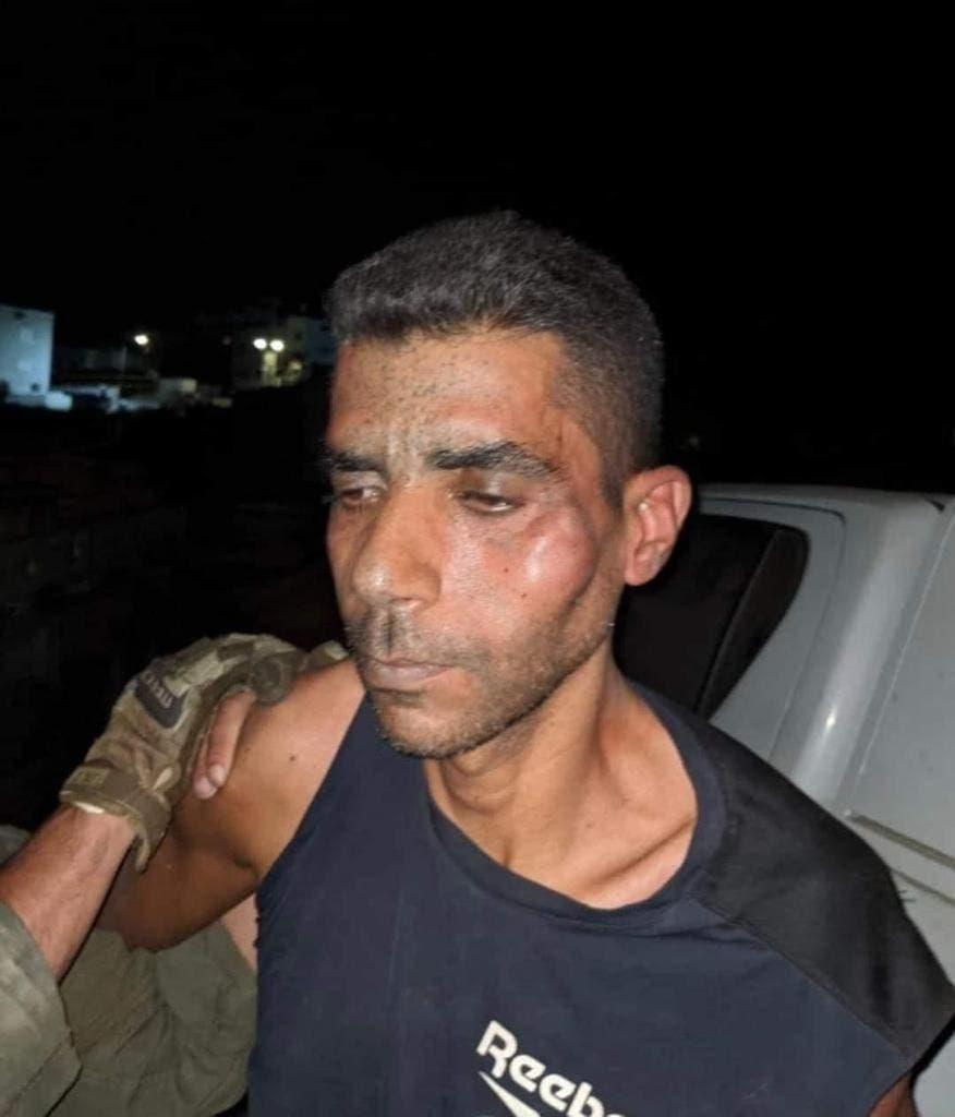 صورة تظهر اثار الاعتداء الذي تعرض له الاسير زكريا الزبيدي خلال اعتقاله