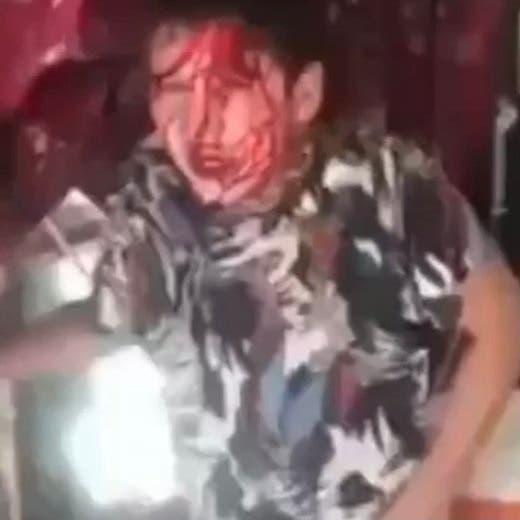 """""""بابا اقتلني"""" صرخة تفطر القلوب.. طفل معنف يطلب الموت لإنهاء معاناته"""