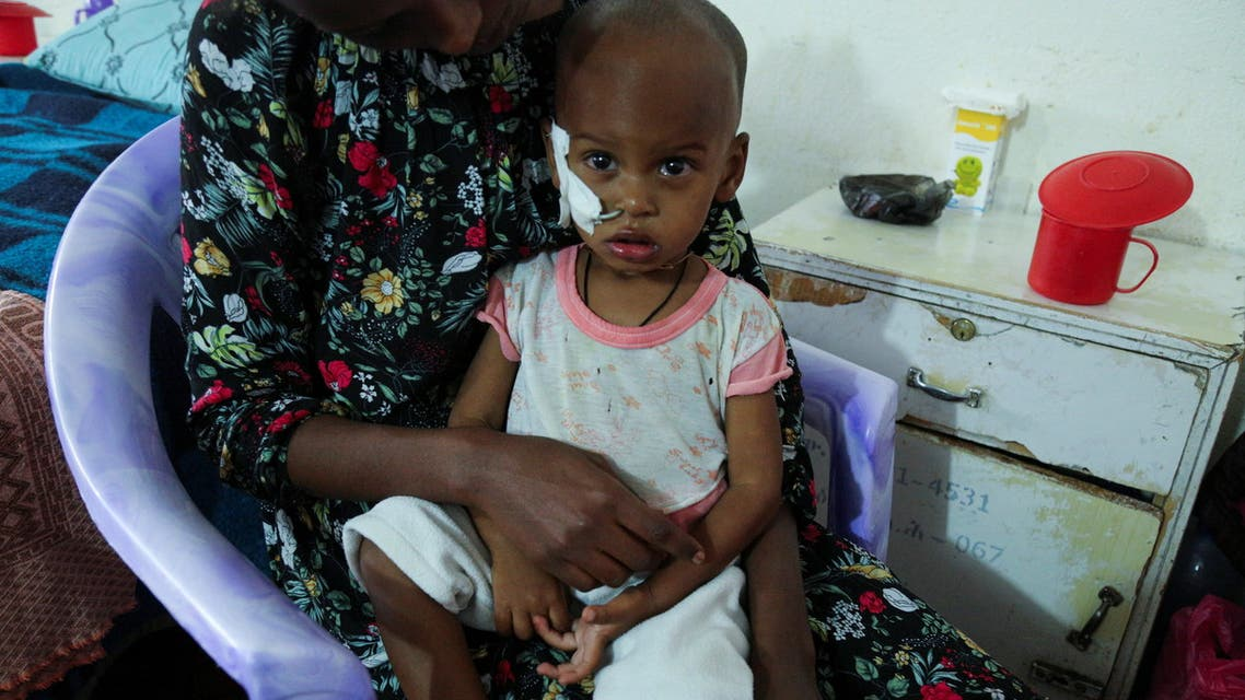 Aamanuel Merhawi, aged one year and eight months, who suffers from severe acute malnutrition, is seen fitted with a nasogastric tube at Wukro hospital in Wukro, Tigray region, Ethiopia July 11 2021. Picture taken July 11, 2021. REUTERS/Giulia Paravicini
