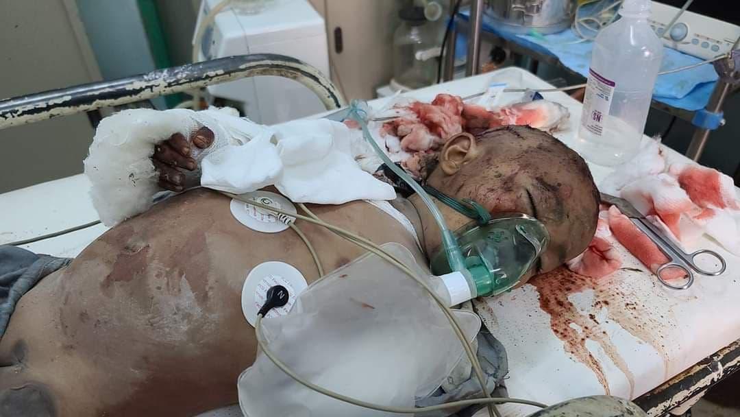 يكی از کودکانی که با موشک بالستیک ساخت ایران توسط حوثیها به قتل رسید