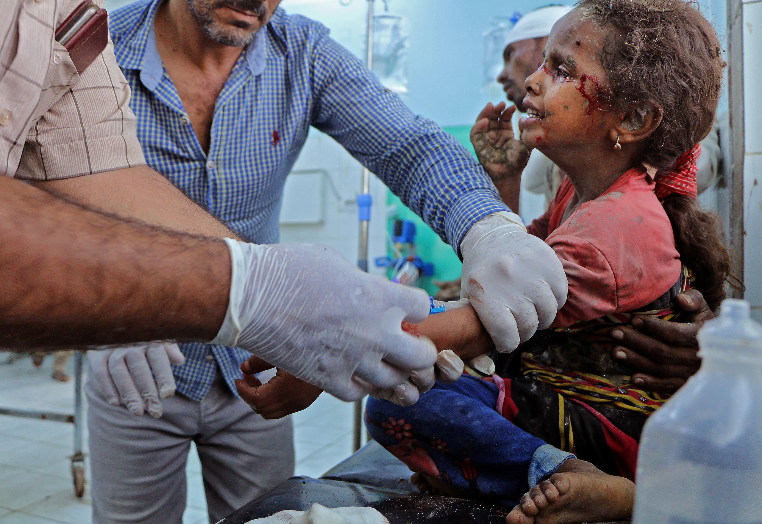 طفلة مصابة جراء هجوم حوثي سابق على مأرب (فرانس برس)