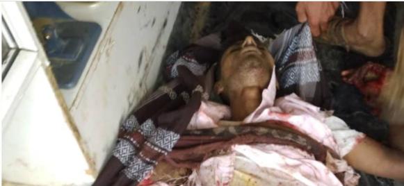 أحد المتوفين في حجة بسبب الألغام الحوثية