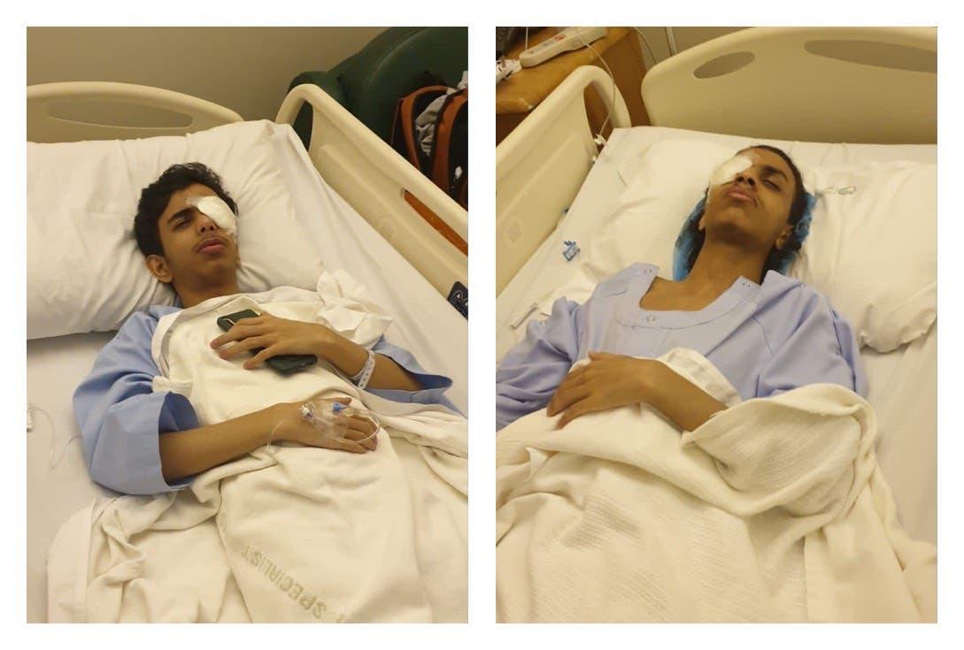 الشابان بعد إجراء العملية