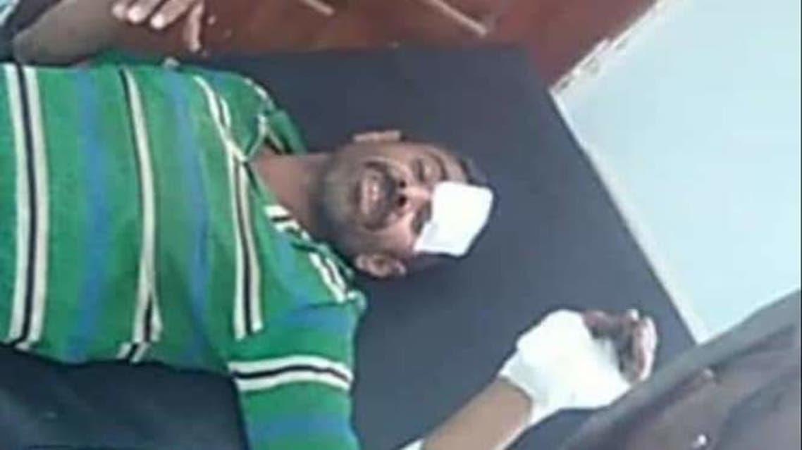 من ضحايا ألغانم الحوثي