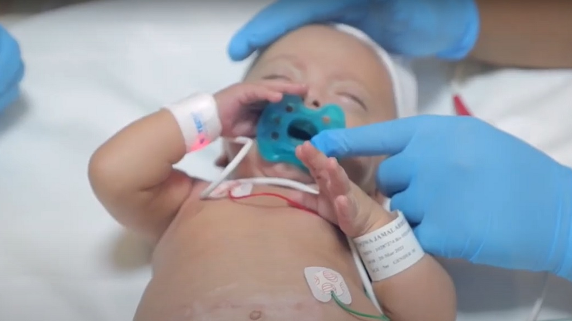 Adel was born on March 20 at Danat Al Emarat Hospital for Women & Children in Abu Dhabi at 23 weeks. (Supplied)