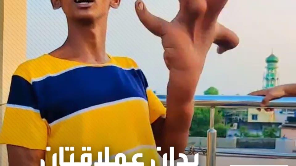 صاحب أضخم يدين في العالم، يشارك تحديات طريفة على تيك توك