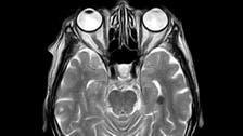 کووِڈ-19 سے دماغ کو پہنچنے والا نقصان اسٹروک ایسا ہے: نئی تحقیق