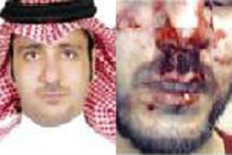 """اعتداء """"عنصري"""" على مبتعث سعودي ببريطانيا يؤدي لكسر أنفه"""