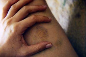العنف ضد المغربيات يتخطى الضرب إلى التبول على المرأة وتعريتها