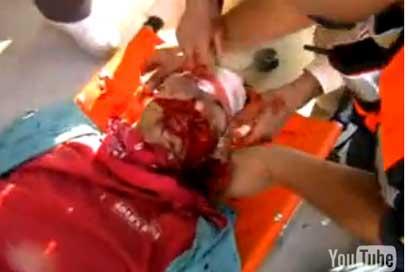 US activist shot by Israeli soldier still critical