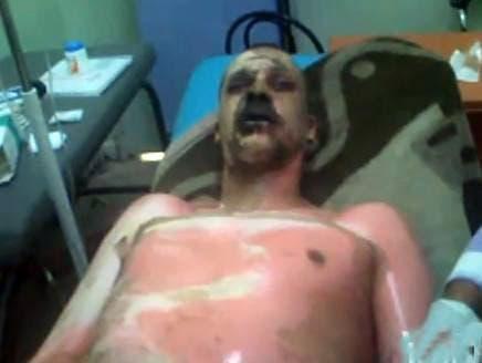 Algerian dies in self-immolation, echoing Tunisia