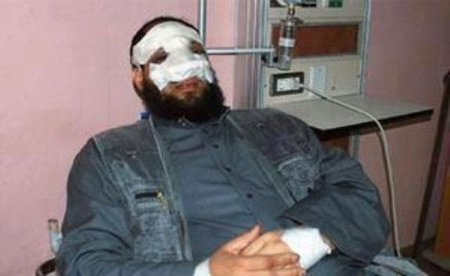 Egypt's Islamist party sacks MP for getting a nose job