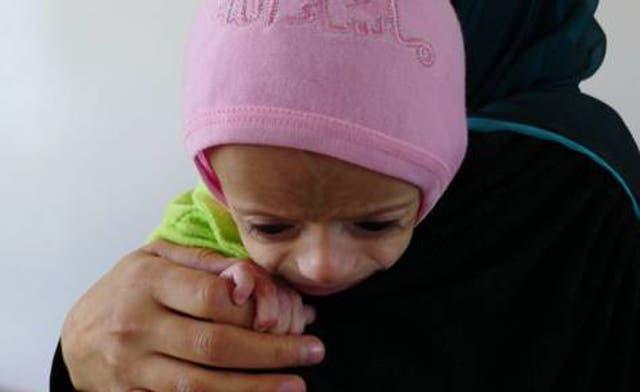 State of malnourished Yemeni children reaches crisis level